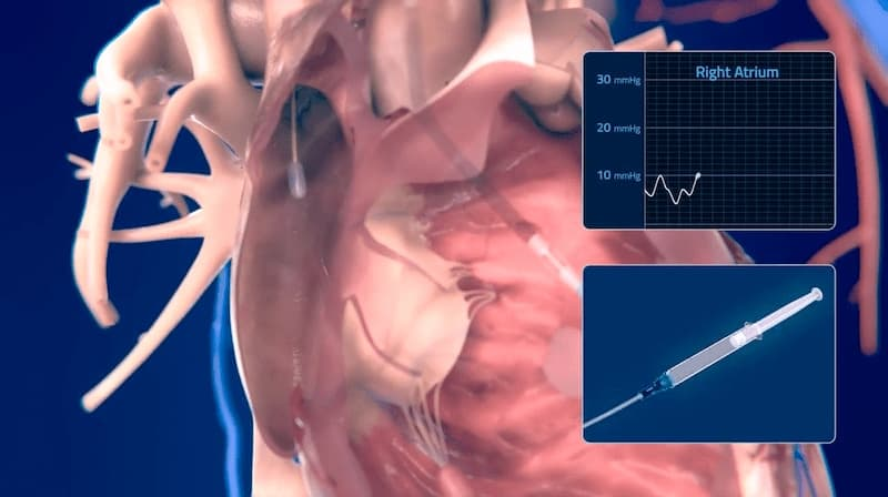 Medical Animation Swanz Ganz